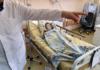 Минздрав на треть урезал бюджетные расходы на лечение людей с редкими заболеваниями