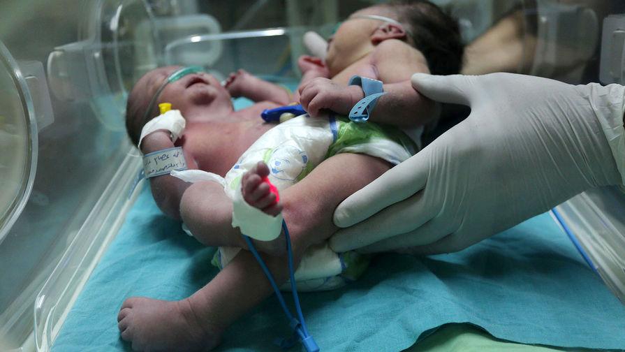 В Черновцах умерли сиамские близнецы с двумя головами и общим телом