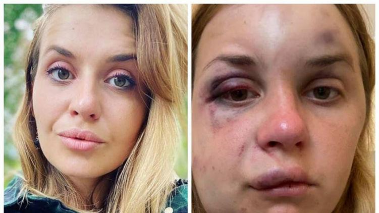 Работающий в Раде активист позлорадствовал избиению в поезде ведущей