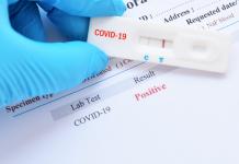 В Африке разработали быстрый тест на COVID-19 стоимостью $1